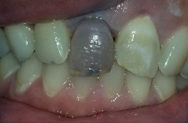 Darkly colored front tooth