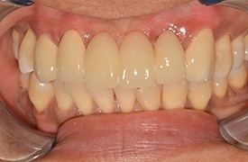 Closeup smile after treatment