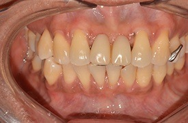 Closeup smile before treatment