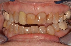 Closeup of decayed and discolored teeth