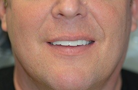 Man's smile after chip tooth repair