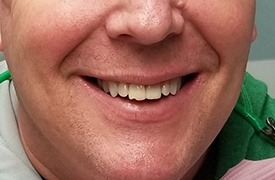 Man's smile with chipped tooth