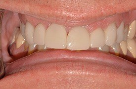 Healthy and evenly aligned teeth