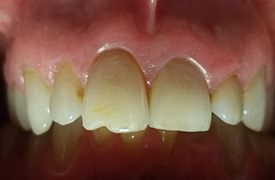 Damaged and unven smile