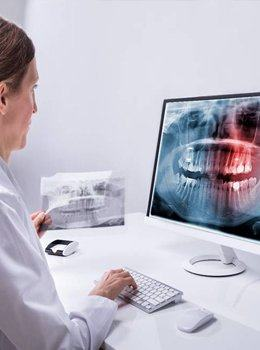 Dentist reviewing dental x-rays
