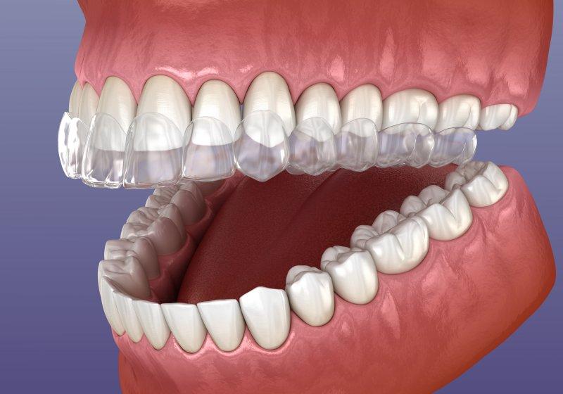 Invisalign on teeth